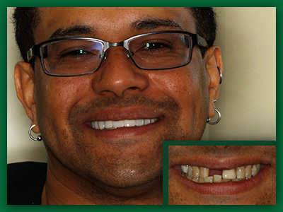 Another patient showing off new porcelain veneers and crowns in Jefferson City.