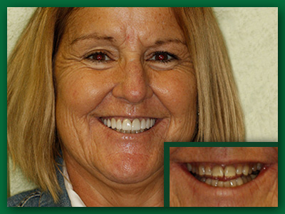 Dental veneer before and after photo.