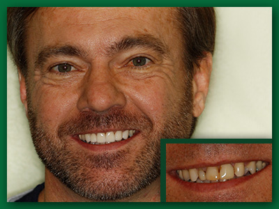 Patient from Jefferson City shows off a combination of nice looking dental crowns and veneers.