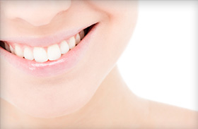 Advanced Teeth Whitening with a Jefferson City dentist California MO