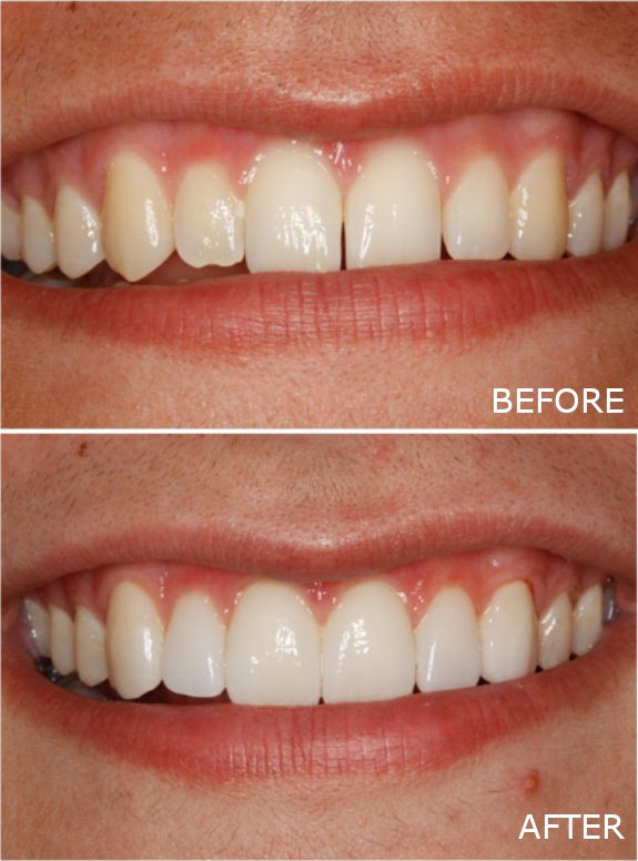Before and after photo showing the dramatic improvement that porcelain veneers can make for Jefferson City patients.